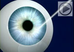 Video introduction of intralase bladeless LASIK