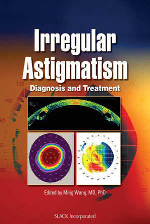 Irregular Astigmatism - Diagnosis and Treatment